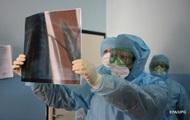 США превзошли рекорд Бразилии по коронавирусу